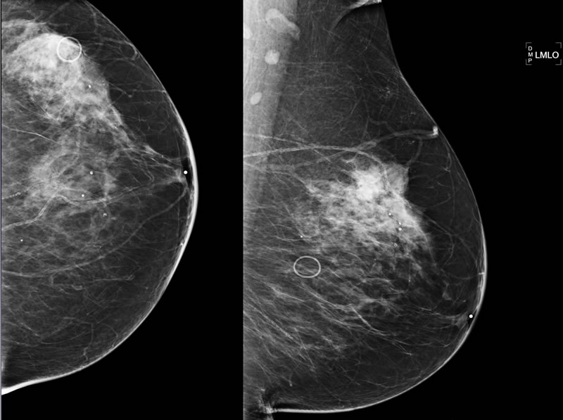 Breast Density: What Is It And What Does It Mean For Me?