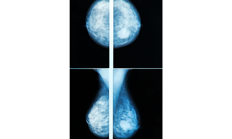 Change in Mammographic Density as a Marker of Tamoxifen Effect in Premenopausal Breast Cancer