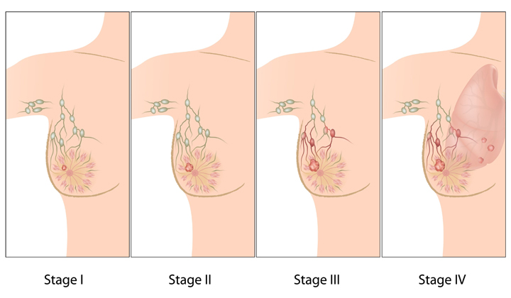 Clinical Staging of Breast Cancer