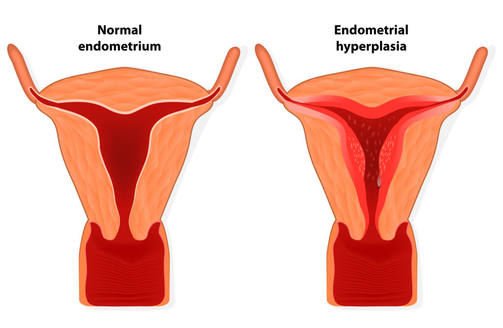 Use of Metformin to Combat Tamoxifen-Related Endometrial Changes